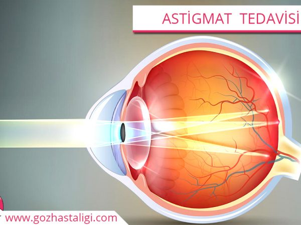 astigmat tedavisi, astigmat, astigmat göz, astigmat hastalığı,