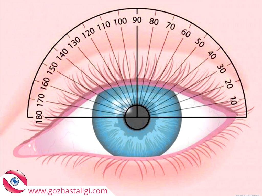 astigmat, astirmat, astirmat tedavisi, astigmat foto, göz testi,