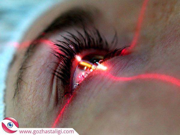 göz çizdirme, lazerle göz çizdirme, lazer göz,