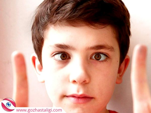 göz kayması, şaşılık, şaşı çocuk, gözü kayan çocuk,