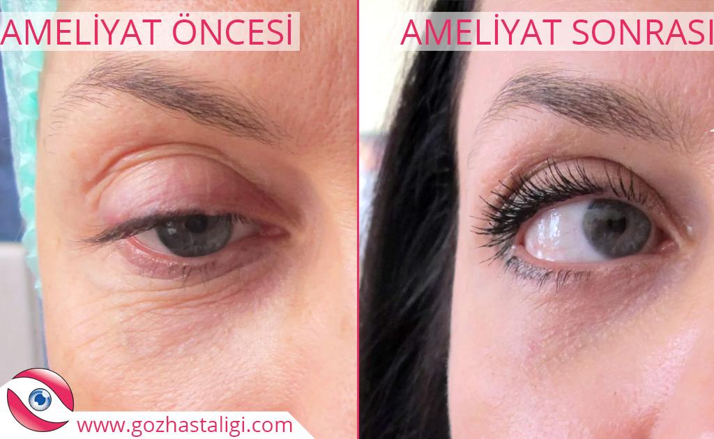 göz kapağı sarkıklığı öncesi, göz kapağı sarkıklığı sonrası, göz kapağı sarkıklığı öncesi ve sonrası,