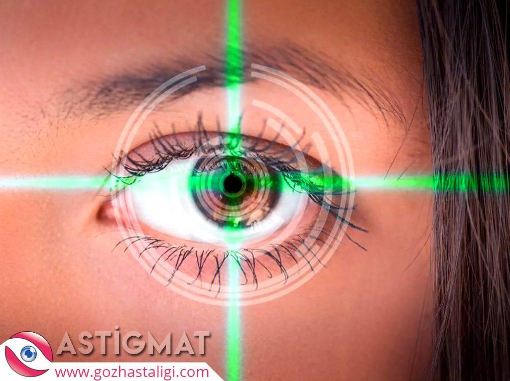 astigmat, astigmat nedir, astigmat nedenleri, astigmat tedavisi, astigmat ışını,