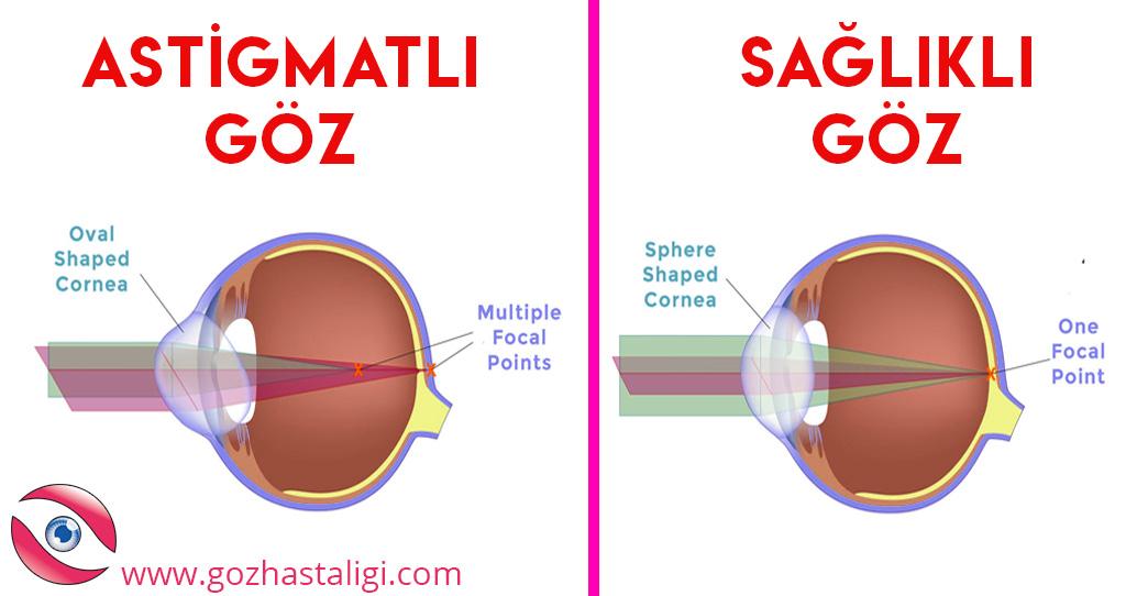astigmatlı göz, astigmatı olan göz, göz merceği kayması,