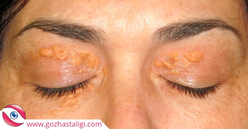 göz kapağı hastalığı, göz kapağının üstünde benek, göz üstünde benekler, göz kapağı üstünde lekeler,