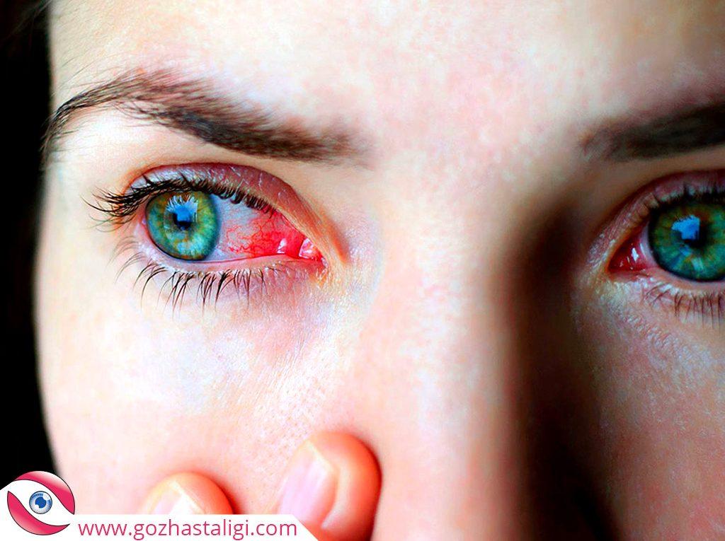 göz kuruluğu, kuru göz, göz kuruluğu hastalığı, kuru göz görseli, kırmızılaşmış göz çevresi,