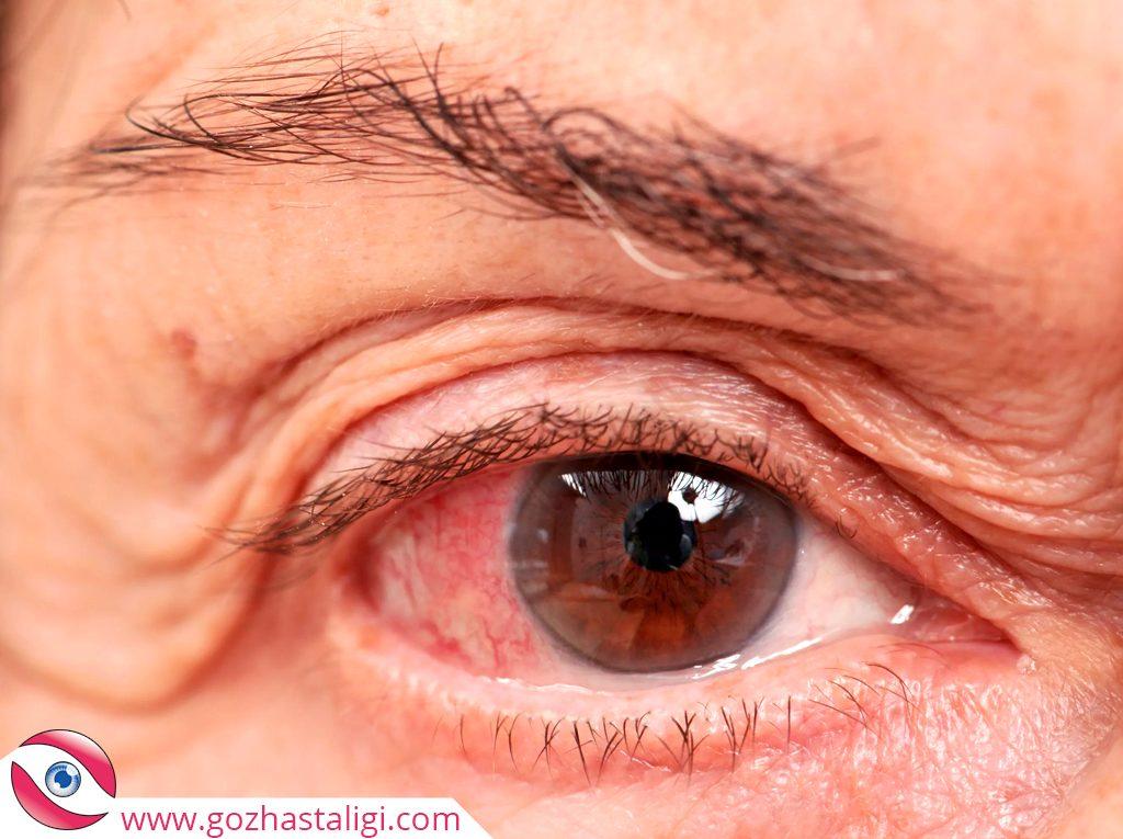 göz tansiyonu, glokom, göz tansiyonu nedir, glokom nedir, kanlanmış göz,