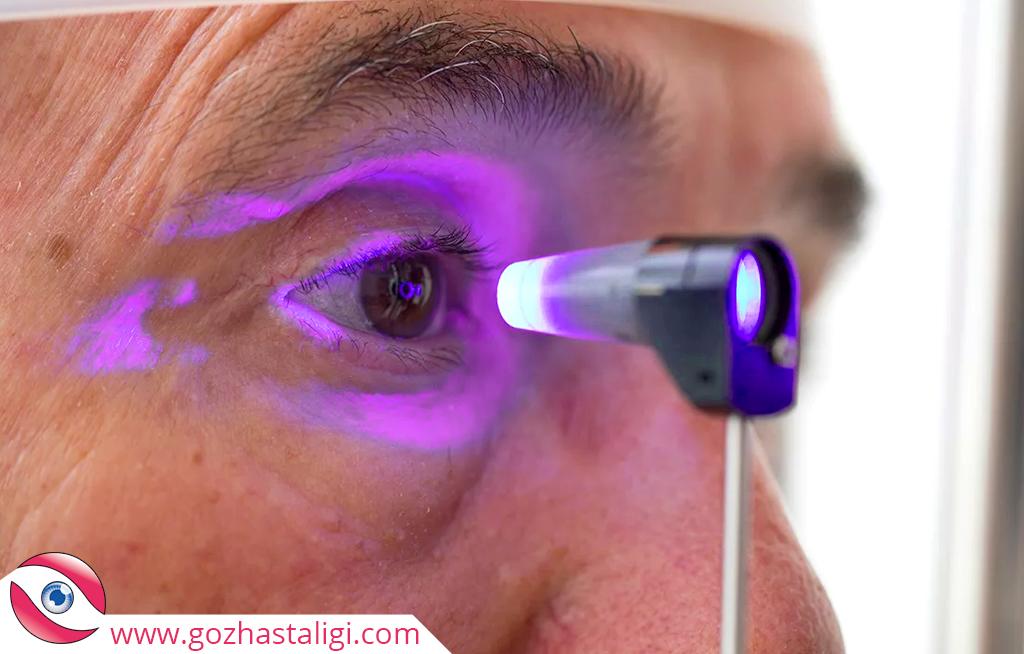 göz tansiyonu tedavisi, göz tansiyonu lazerle tedavi, lazerle göz tansiyonu tedavisi, göze ışın, göze mor ışın,