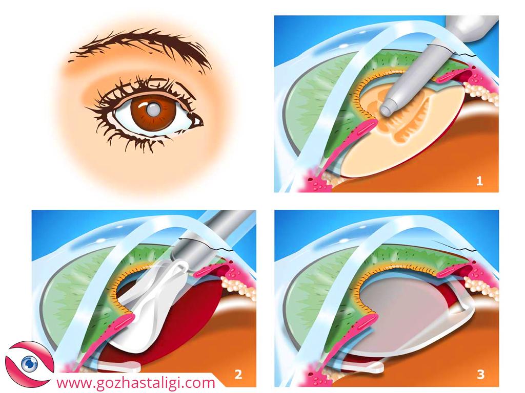 katarakt tedavisi, katarakt aşamaları, katarakt ameliyatı, katarakt ameliyatı aşamaları,