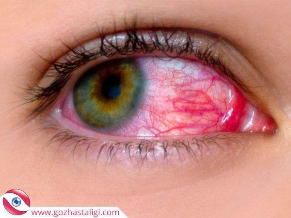 göz nezlesi, göz nezlesi nedir, göz akıtması, göz sulanması,