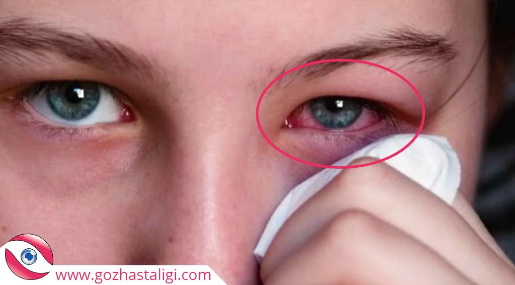 göz nezlesi, göz nezlesi bulanık görme, bulanık görme sorunu,