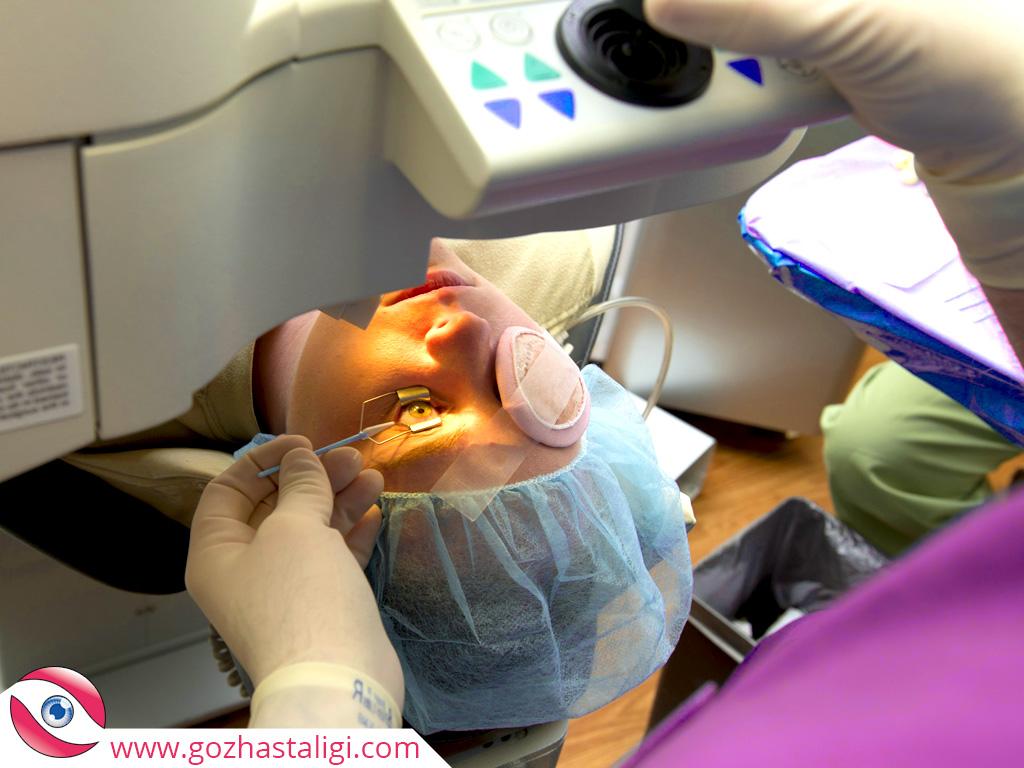 gerçek göz ameliyatı, göz ameliyatı, canlı göz ameliyatı,