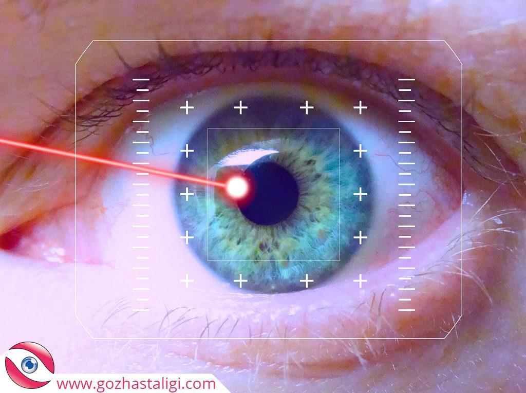 göz lazer ameliyatı, lazer göz ameliyatı, lazer göz ameliyatı fiyatları 2020, hangi göz kusurlarının tedavisinde lazerle ameliyat yapılır,